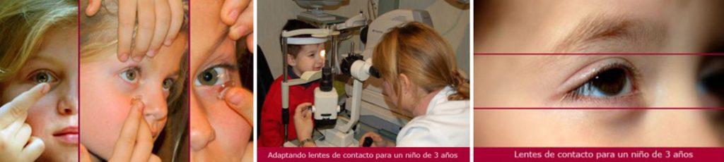 Adaptando lentes de contacto a niños
