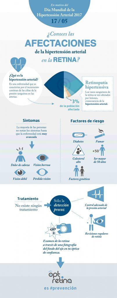 ¿Cómo afecta la hipertensión arterial en la retina?