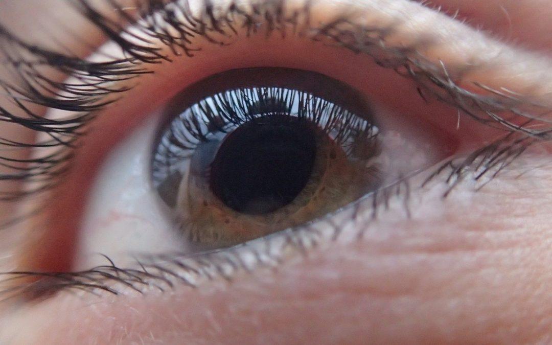 ojo-glaucoma