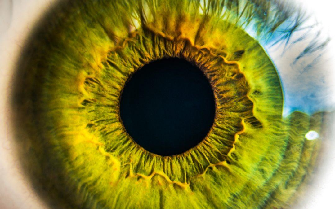 ¿Se puede controlar la miopía con lentes blandas en casos de miopía y astigmatismo?